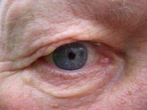 מלנומה של העין