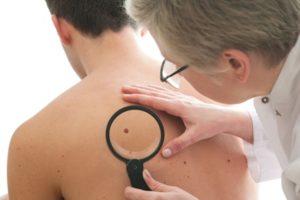 איך לאתר סימנים מוקדמים לסרטן העור